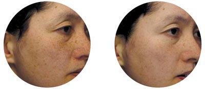 Niacinamide-age-spots